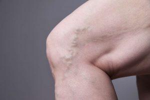 ameliyatsiz-varis-tedavisi-samsun